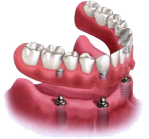Example of Implant-Supported Dentures