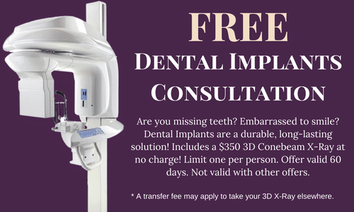 Free Dental Implants Consultation Special Offer